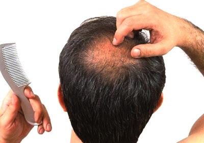Масло облепиховое для роста волос siberica